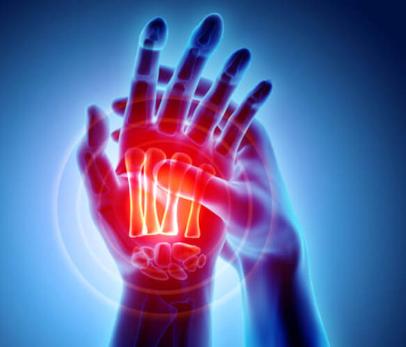 Arizona Hand Surgery Recovery & Physical Therapy