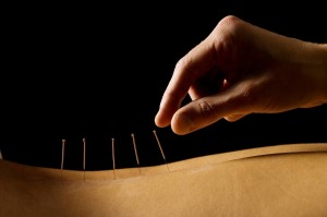 acupuncture+&+dry+needling
