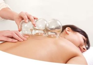 cupping therapy in Arizona
