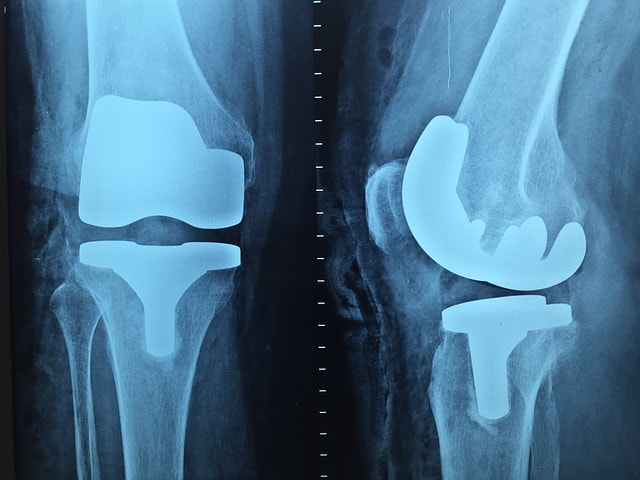 Knee Injuries: Best Way to Prevent Them